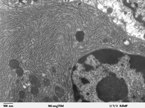 RE_Clara_cell_lung_500